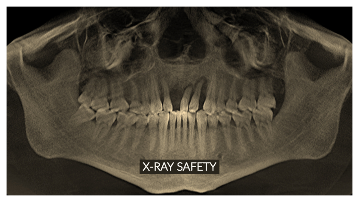 Dental X Ray Safety Yellow House Dental Implant Center